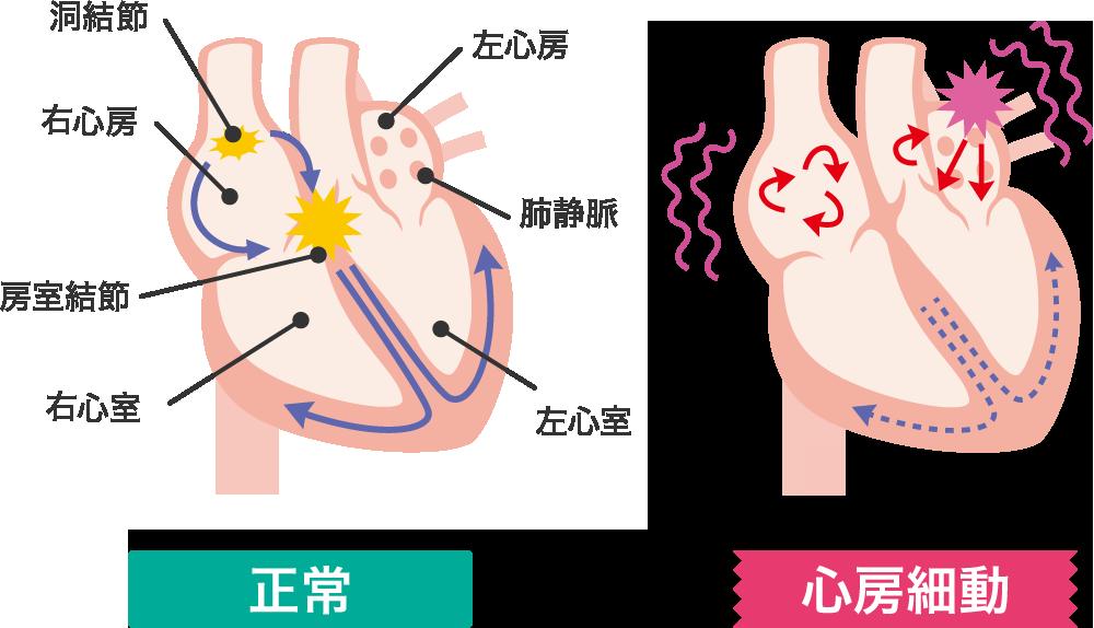 心房細動とは? | 心房細動ナビ | 日本ライフライン株式会社
